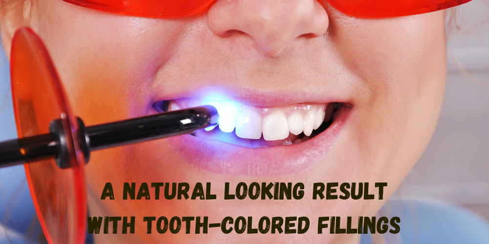 tooth colored fillings hamilton nj